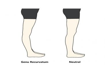 statisticile de afectare a genunchiului